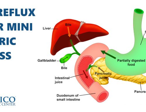 Bile Reflux After Mini Gastric Bypass Surgery