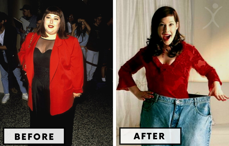 Carnie Wilson Lap Band Surgery - Celebrity Weight Loss Surgery