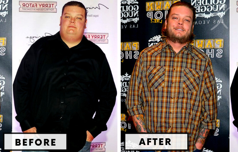 Corey Harrison Gastric Bypass - Celebrity Weight Loss Surgery