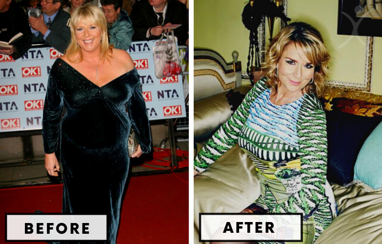 Fern Britton Lap Band - Celebrity Weight Loss Surgery