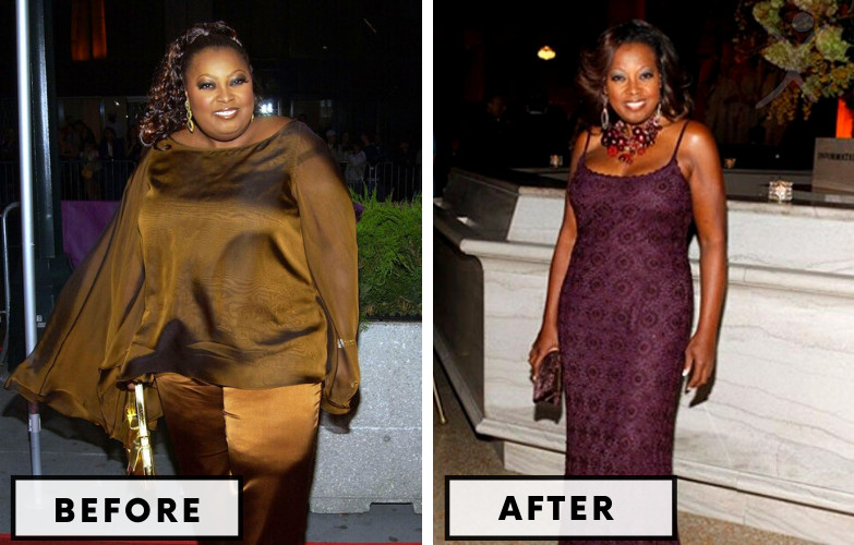 Gabourey Sidibe Laparoscopic Bariatric Surgery - Celebrity Weight Loss Surgery
