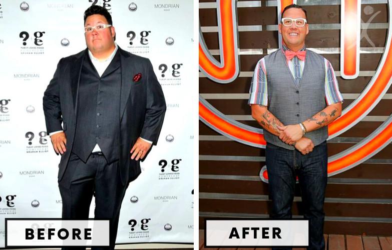 Graham Elliot Gastric Sleeve - Celebrity Weight Loss Surgery