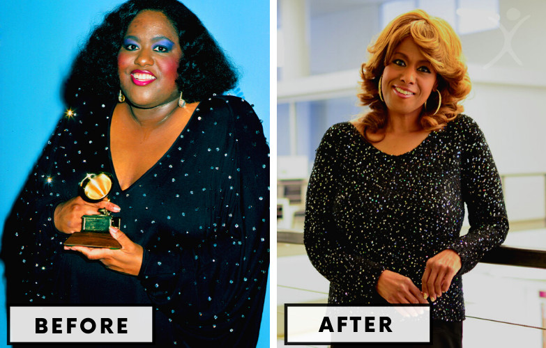 Jennifer Holliday Gastric Bypass - Celebrity Weight Loss Surgery