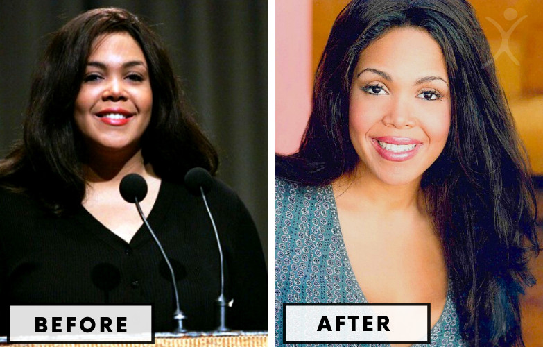 Khaliah Ali Gastric Band - Celebrity Weight Loss Surgery