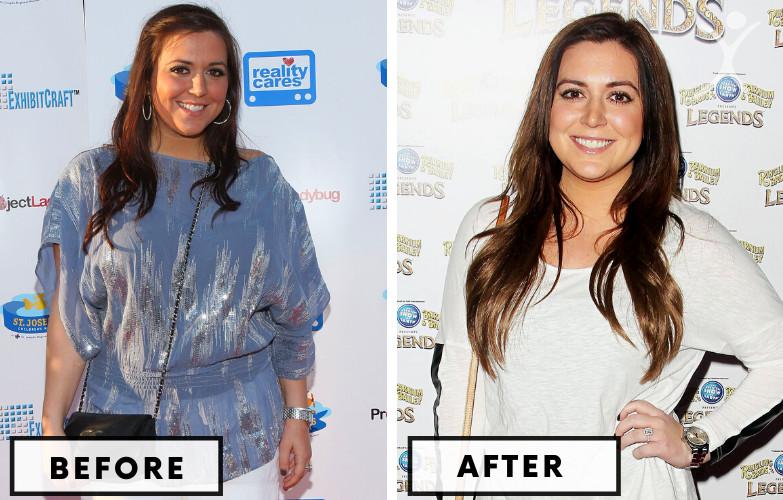 Lauren Manzo Lap Band - Celebrity Weight Loss Surgery