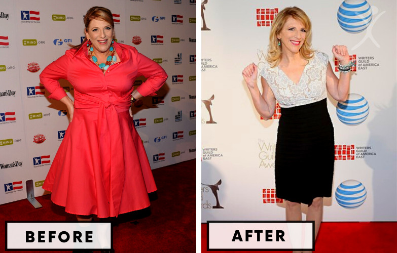 Lisa Lampanelli Gastric Sleeve - Celebrity Weight Loss Surgery