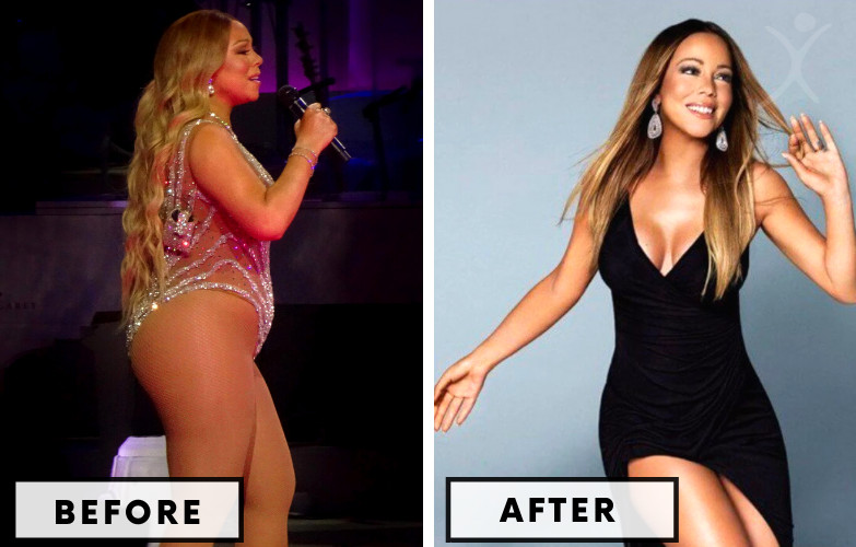 Mariah Carey Gastric Sleeve Surgery - Celebrity Weight Loss Surgery