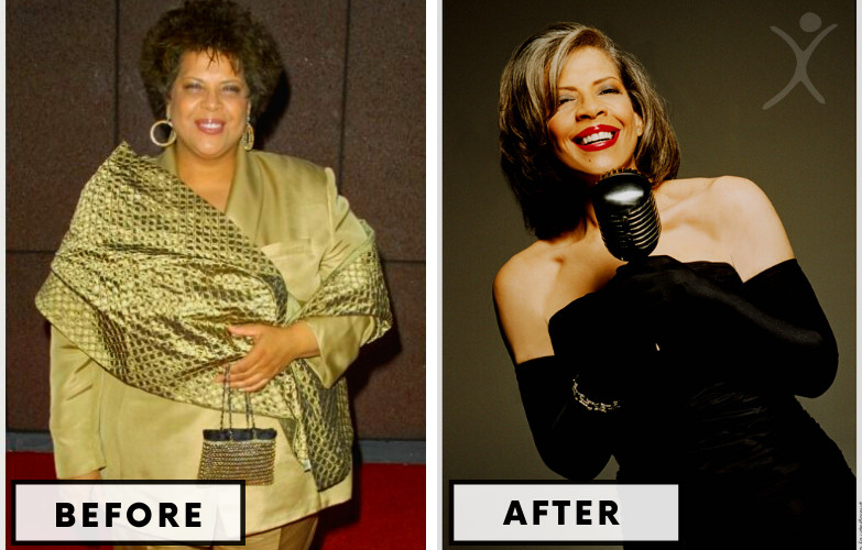 Patti Austin Gastric Bypass - Celebrity Weight Loss Surgery
