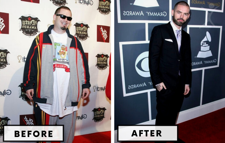 Paul Wall Gastric Sleeve - Celebrity Weight Loss SurgeryPaul Wall Gastric Sleeve - Celebrity Weight Loss Surgery