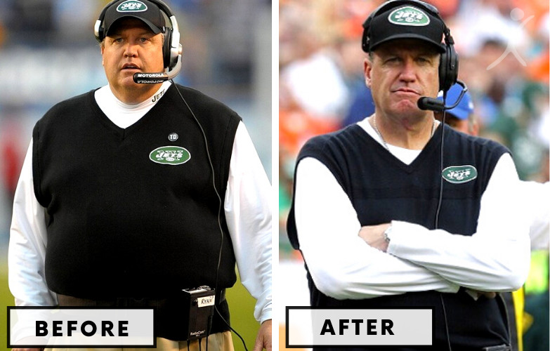 Rex Ryan Gastric Band - Celebrity Weight Loss Surgery