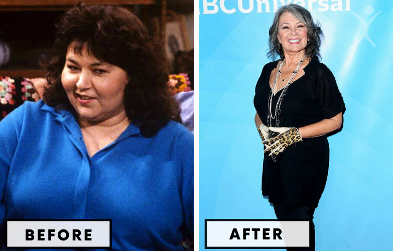 Roseanne Barr Gastric Bypass - Celebrity Weight Loss Surgery