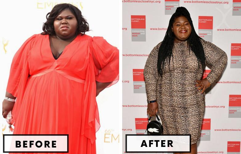 Star Jones Gastric Bypass Surgery - Celebrity Weight Loss Surgery