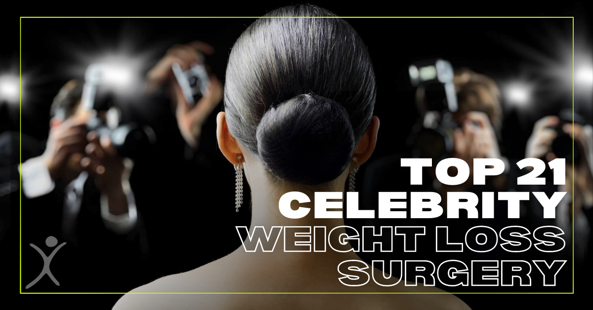 Top 21 Celebrity Weight Loss Surgery - Mexico Bariatric Center