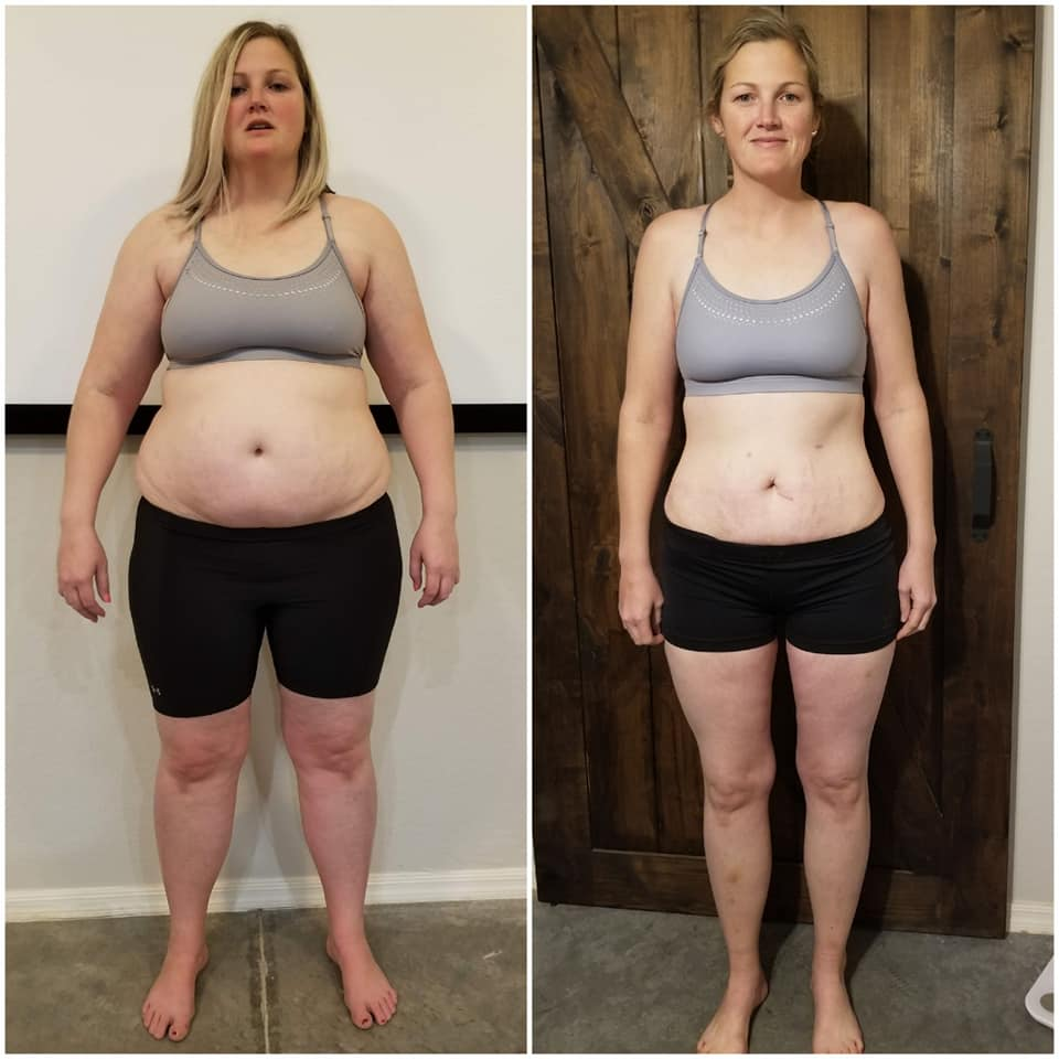 Calli Leavitt - Weight Loss Surgery with Dr. Louisiana Valenzuela