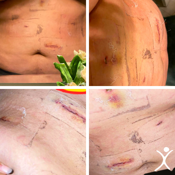 Incision Wounds After Bariatric Surgery - Removing Bandages