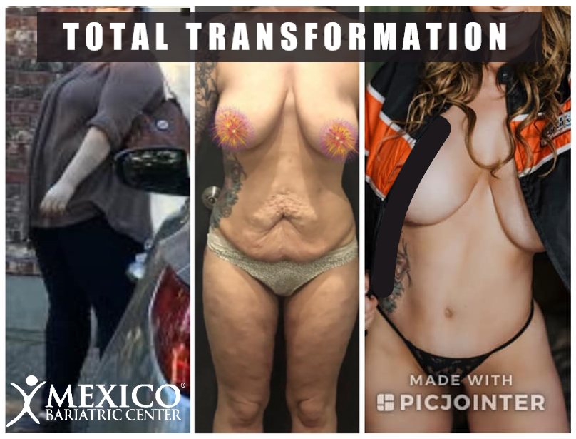 Jennifer G Total Transformation - Gastric Sleeve Surgery - Mommy Makeover - Mexico Bariatric and Cosmetic].jpg