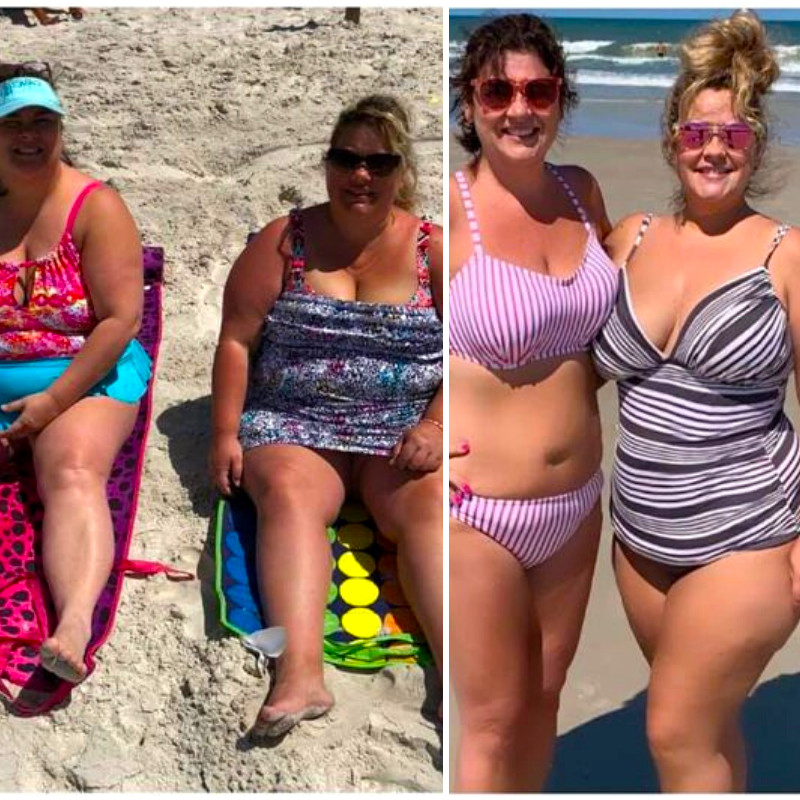 Shannon B - Before and After Weight Loss Surgery