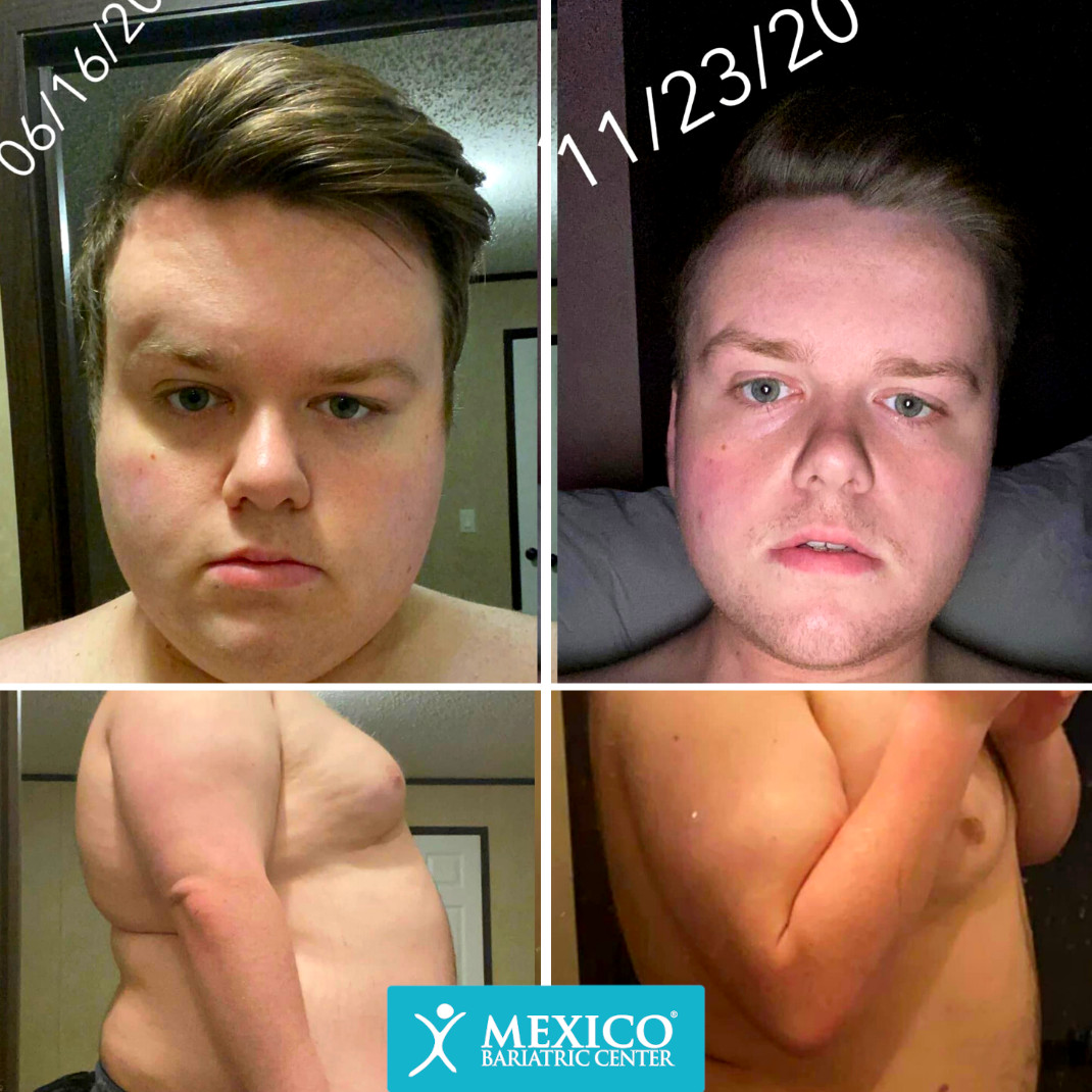 Christian West - Duodenal Switch Surgery Before and After Photo