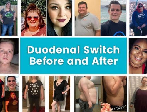 Duodenal Switch Surgery Before and After Photos