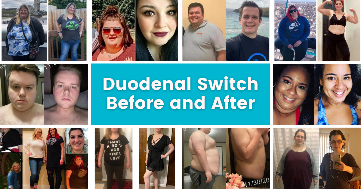 Duodenal Switch Surgery Before and After Photos - BPD-DS Picture