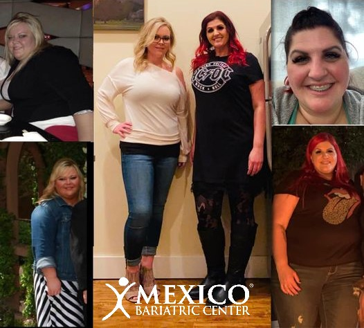 Duodenal Switch and SADiS Patient Success - Mexico Bariatric Center