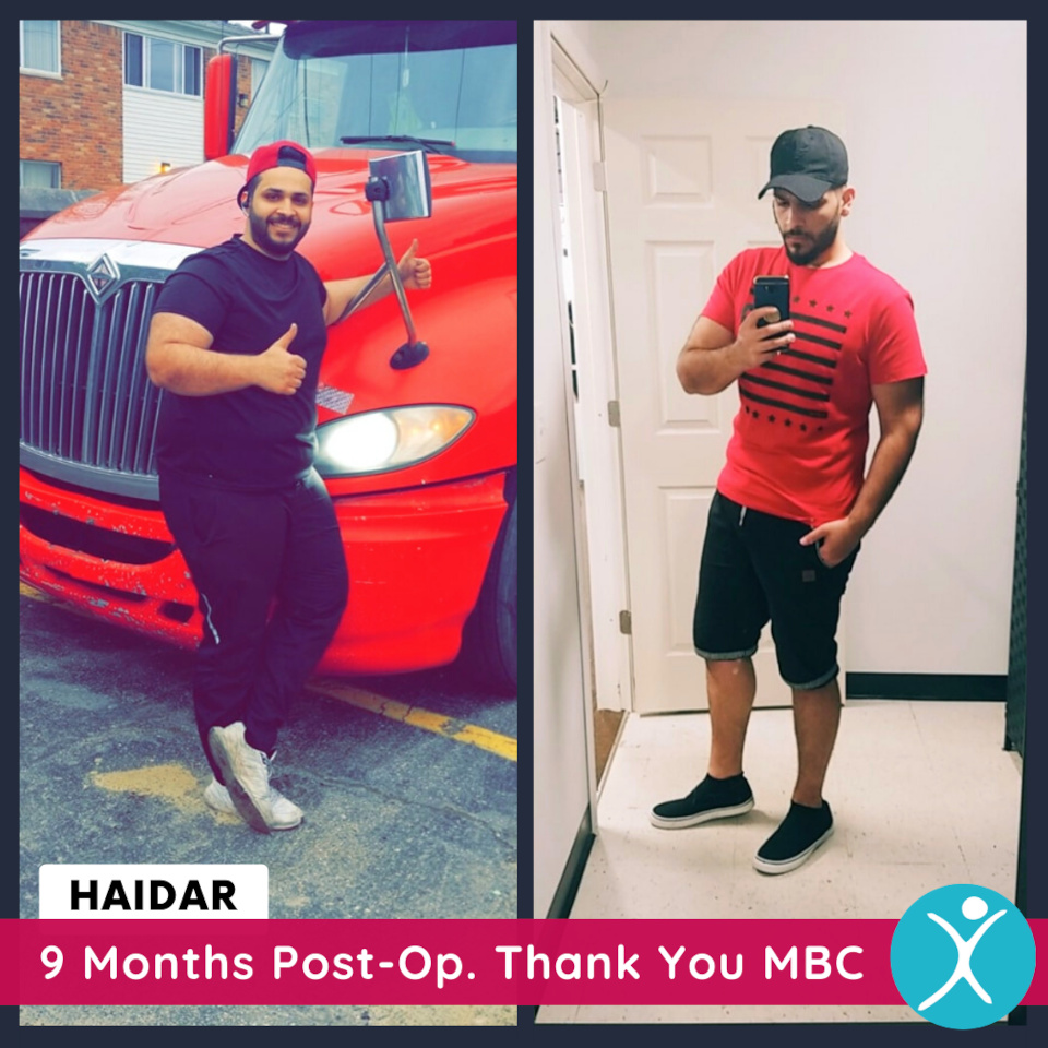 Haidar - Gastric Bypass Before and After Photo - 9 months post op