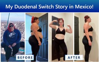 Jamie Duodenal Switch Success Story - Duodenal Switch in Mexico