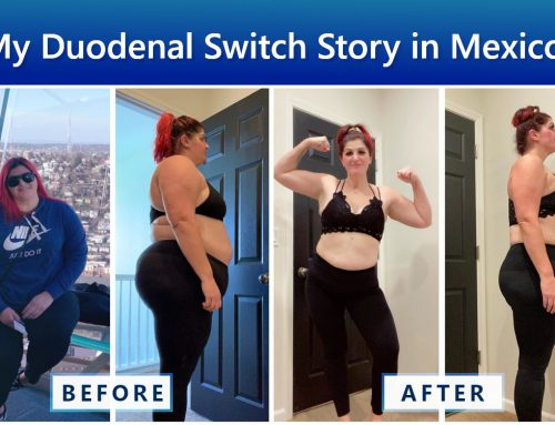 Spotlight on Jamie's Duodenal Switch Surgery Success Story