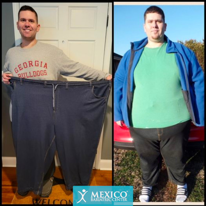Justin Bagwell - Duodenal Switch Surgery Before and After Photo