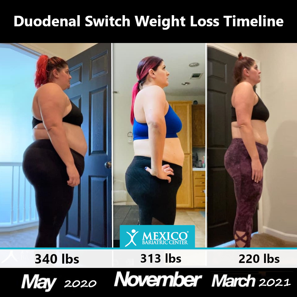 Laparoscopic Duodenal Switch Surgery BPD-DS Weight Loss Timeline