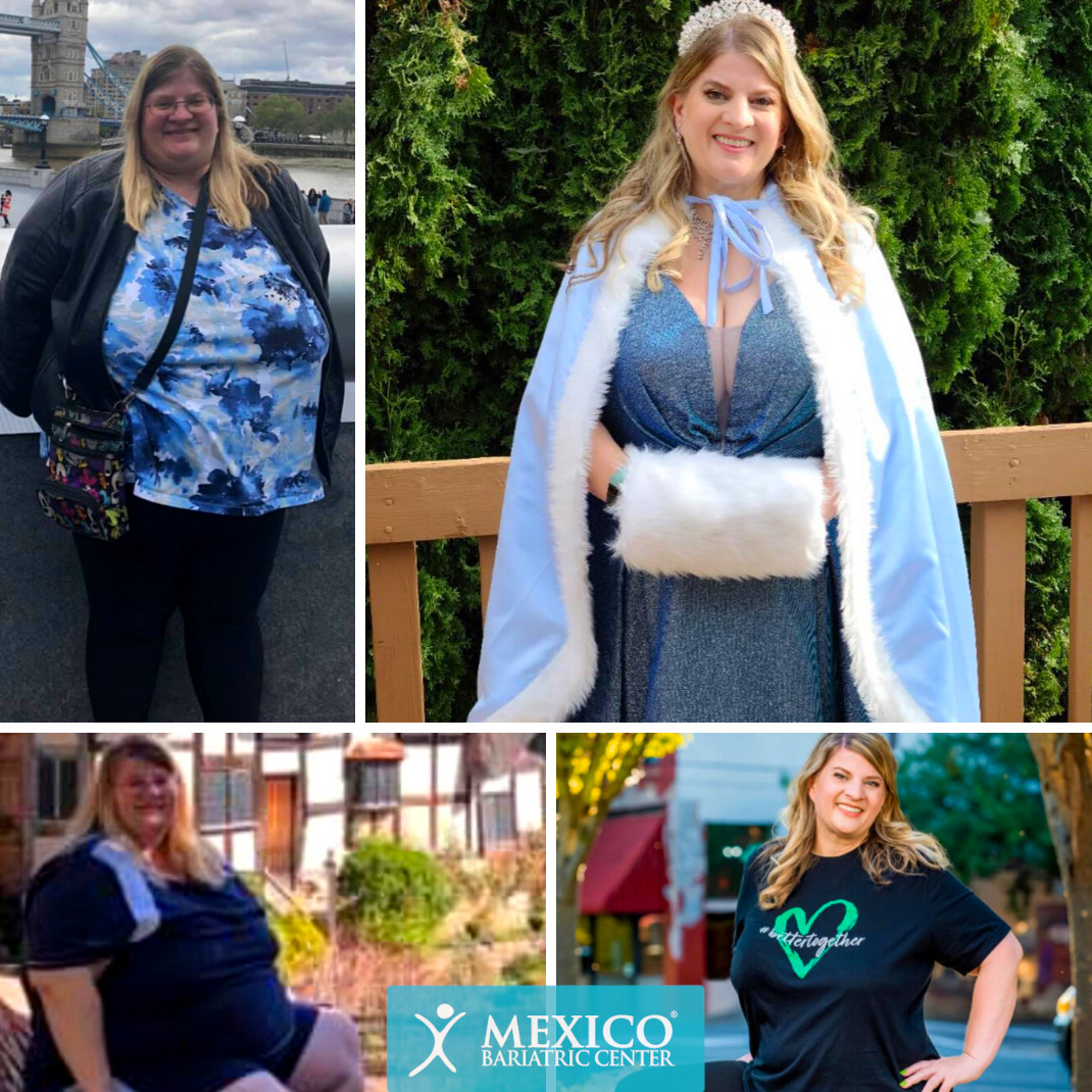 Michelle Christina - Duodenal Switch Surgery Before and After Photo