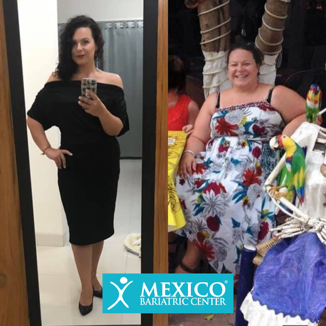 Melissa - Duodenal Switch Surgery Before and After Photo