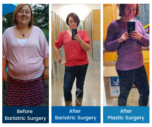 Total Transformation - Jen L - Gastric Sleeve to 360 Tummy Tuck w Muscle Repair & Arm Lift