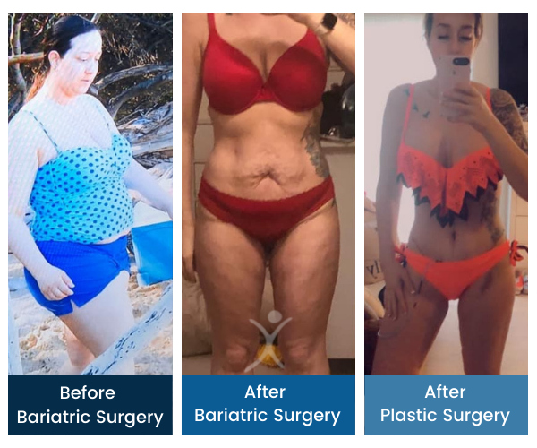 Total Transformation - Jennifer G - Gastric Sleeve to Mommy Makeover