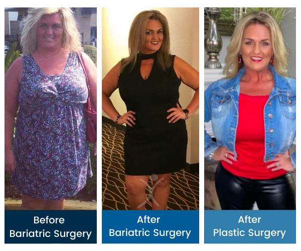 Total Transformation - Joyce Osborne West - Gastric Sleeve to Mommy Makeover