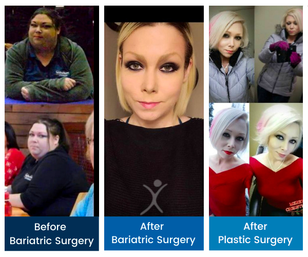 Total Transformation - Kristen Carter - Gastric Sleeve to Mommy Makeover