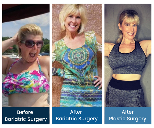 Total Transformation - Laura Zollinhofer - Gastric Sleeve to Mommy Makeover