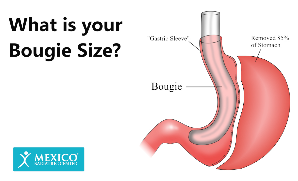 What is your Bougie Size - Gastric Sleeve Surgery