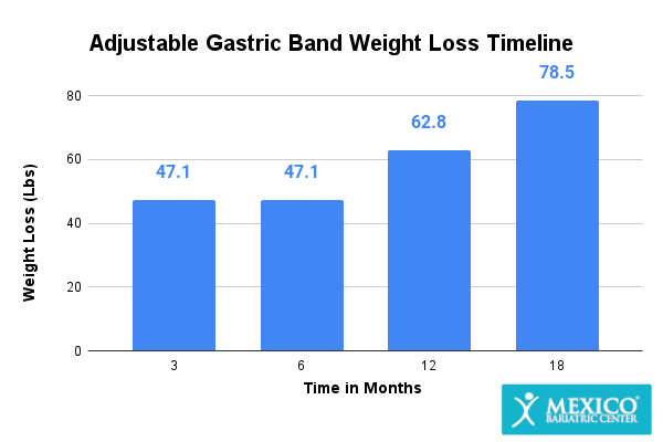 Adjustable Gastric Band Weight Loss Graph
