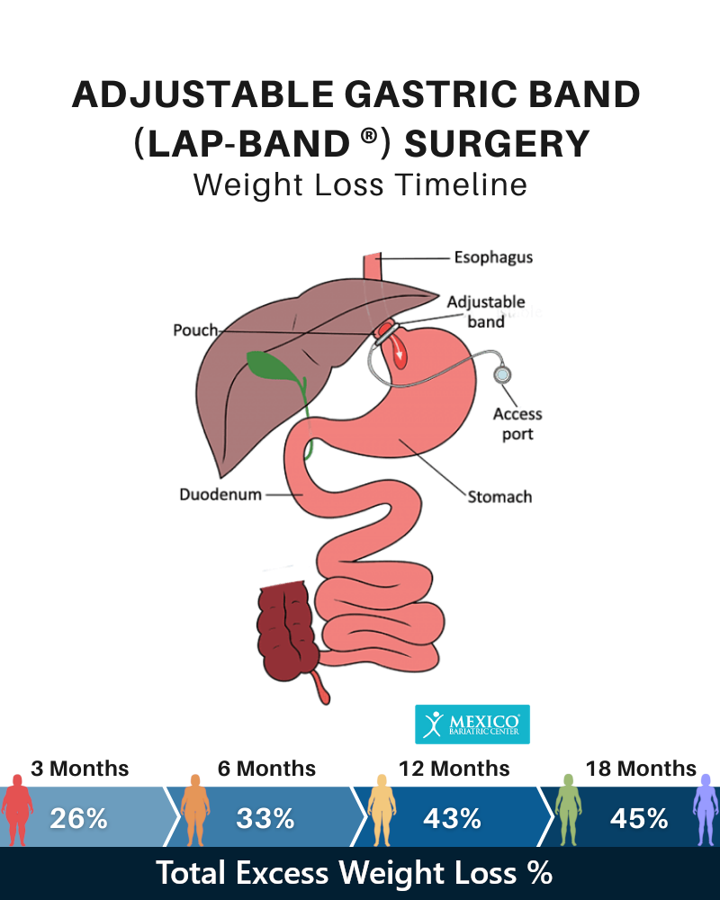 Adjustable Gastric Band Weight Loss Timeline Chart