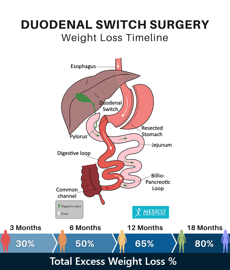 Duodenal Switch Surgery BPD-DS Weight Loss Timeline Chart
