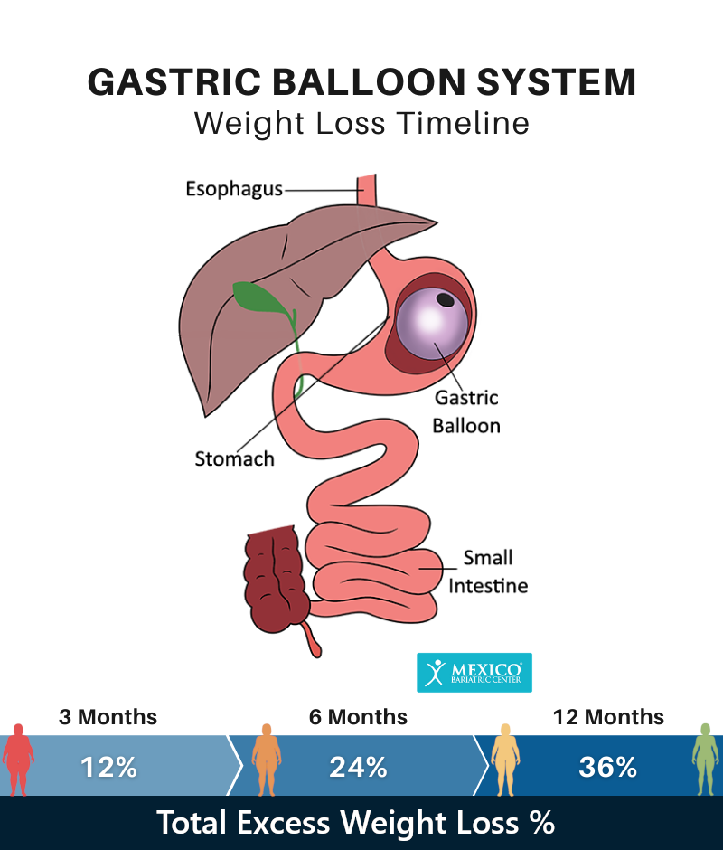 Gastric Balloon System Weight Loss Timeline Chart