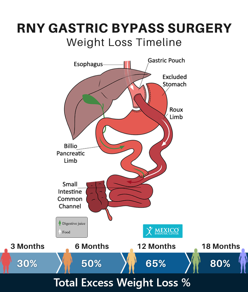 RNY Gastric Bypass Weight Loss Timeline Chart