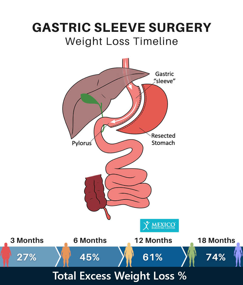 Sleeve Gastrectomy Weight Loss Timeline Chart