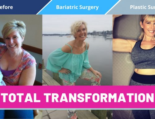 Total Transformations: Post-Bariatric Body Contouring Before & After