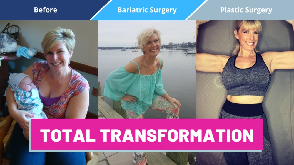 Total Transformation - Bariatric Surgery to Plastic Surgery Procedure