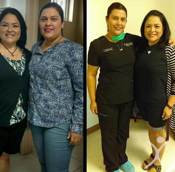 Dr. Valenzuela - Bariatric Surgeon Before and After with Patient