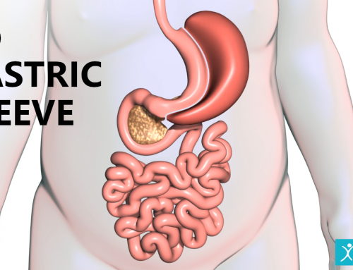 3D Gastric Sleeve: Performing Bariatric Surgery in Three-Dimensions