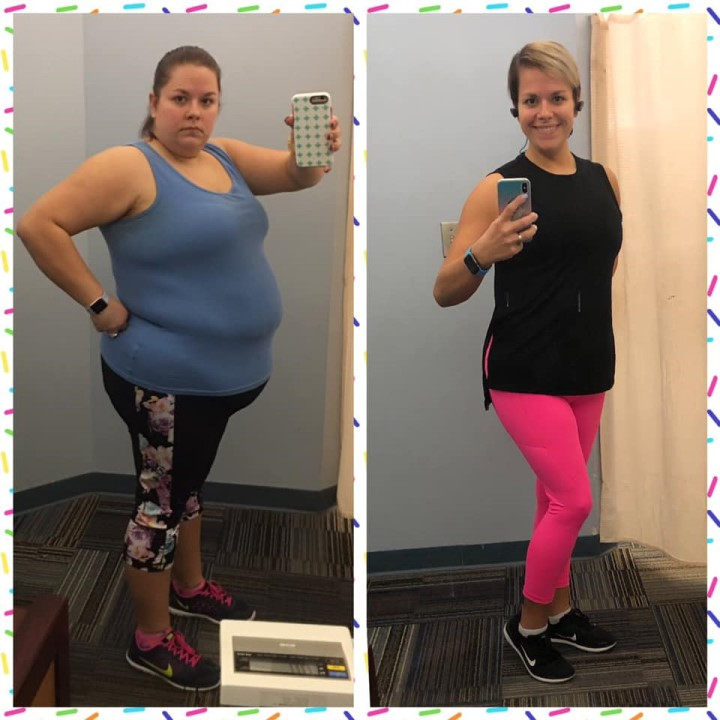 Elizabeth - Gastric Sleeve Before and After Picture
