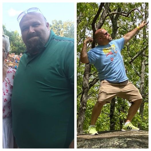 Jerrod Jarvis - Before and After Bariatric Surgery